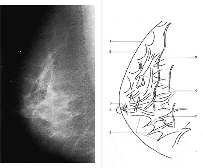 Mammographie Röntgenuntersuchung Der Brust